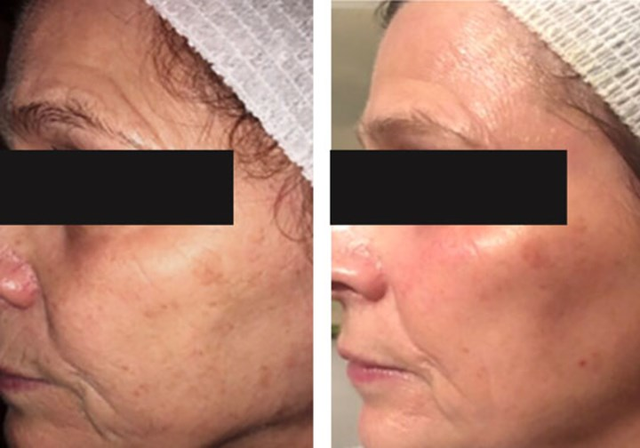 Ageing & Hyperpigmentation